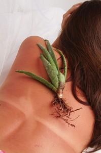 best sunburn treatments
